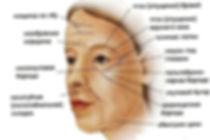 Лимфатический дренаж лица Lorimay