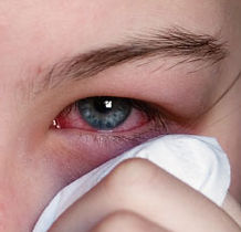 Red eyes, eye infection, red eye treatment