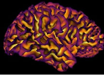 corticalBrains_edited.jpg