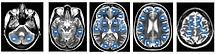 BrainsNodes.jpg
