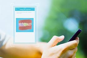 Dental monitoring smartphone app