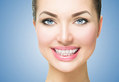 Healthy smiling adult wearing ceramic braces