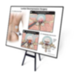 trial exhibit, trial visual, medical records, medical illustration, medical exhibit