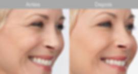 Colageno Hidrlisado Collagen Care