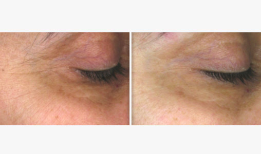 Total Eye Anti-Aging Endermolift
