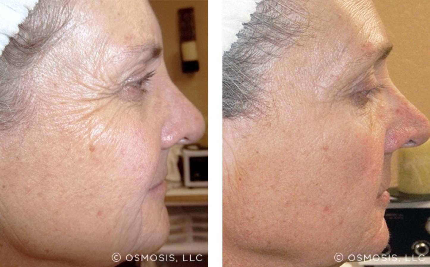 Osmosis - Wrinkles