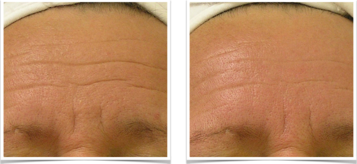 Hydrafacial MD B and A