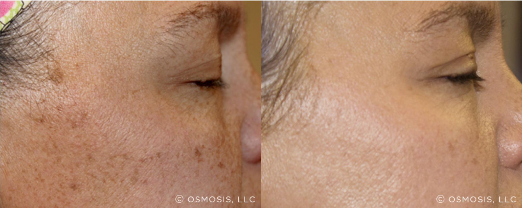 Osmosis - Pigmentation 1
