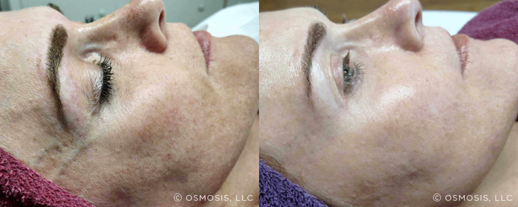 Osmosis - Pigmentation 2