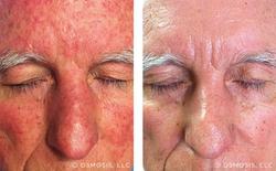 Osmosis - Dermatitis
