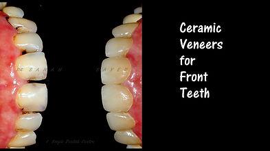 Ceramic Veneers for Teeth