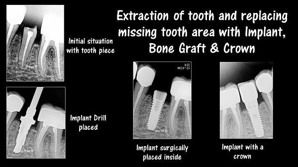 Dental Implant X Ray