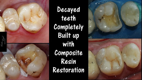 Teeth Decay filled with composite resin filling