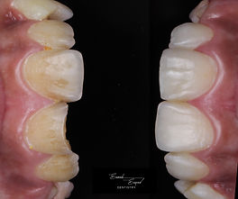 Front tooth chip repair