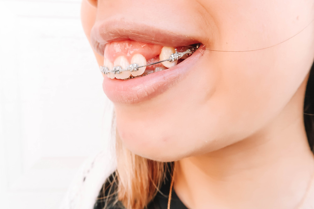 side view of girl with braces and gaps in teeth