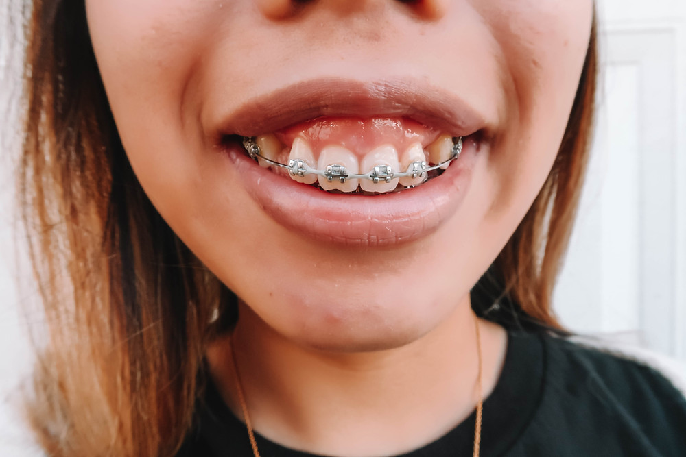 up close photo of girl with braces