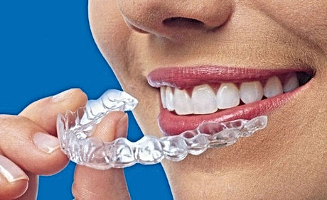 invisalign-treatment-palm-beach-gardens.