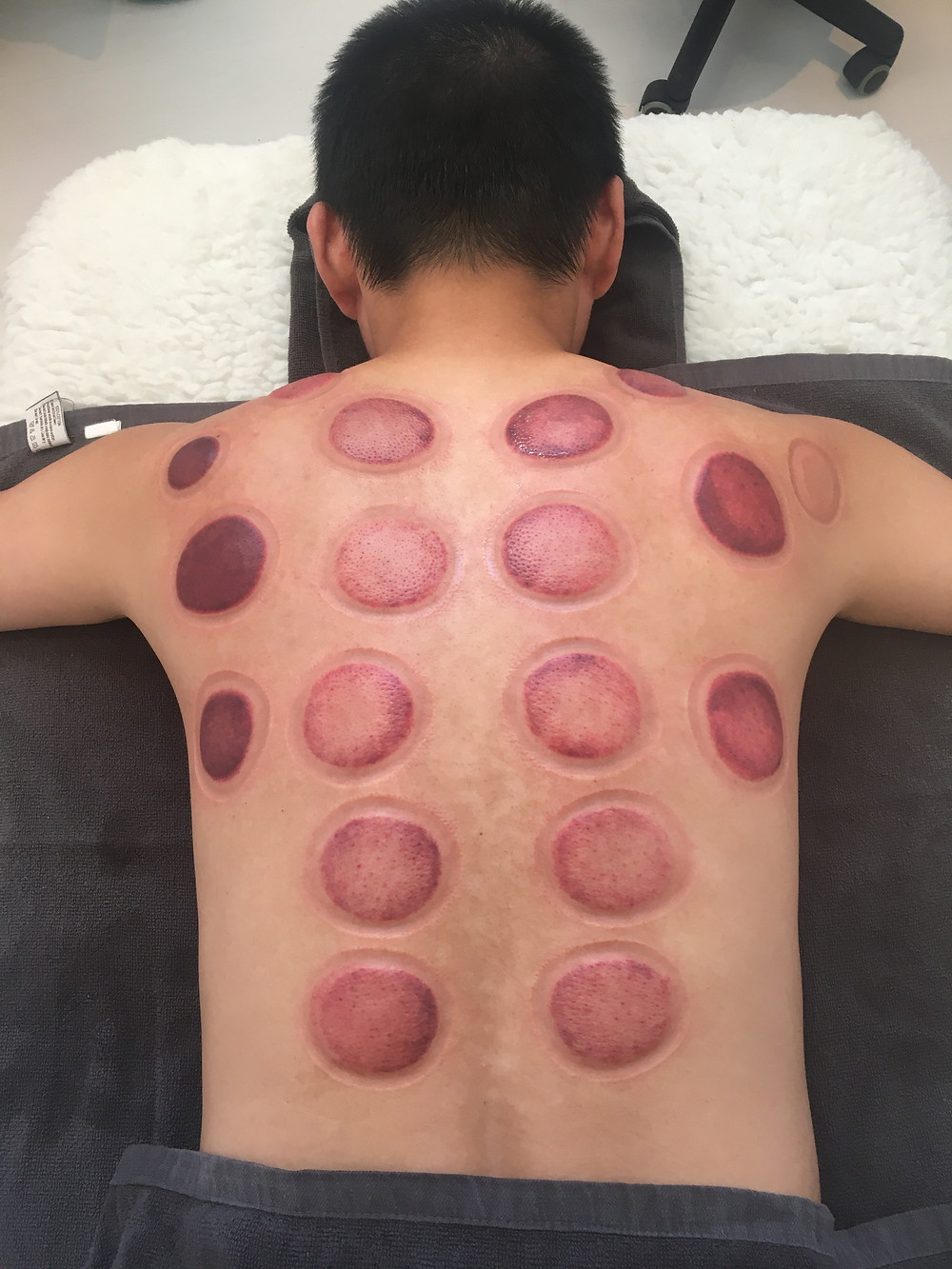 Marks from cupping therapy