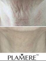 plamere_marketing_neck.JPG