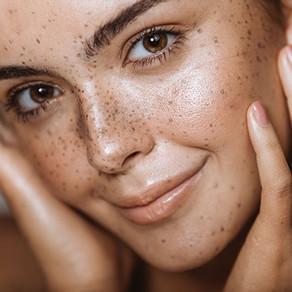 Les taches pigmentaires, les comprendre, les prévenir et les traiter