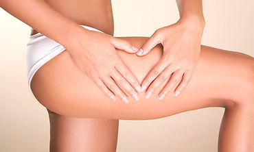 Cellulite-Removal-Myths.jpg