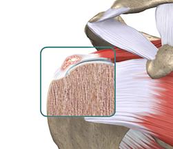 Porque a dor no ombro piora ao deitar-se?