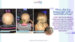 Alopecia Totalis to Full Hair Growth - Case Study