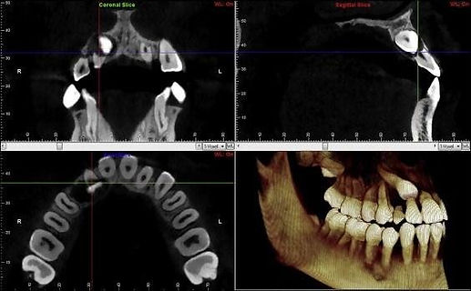 CBCT use in dentistry.jpeg