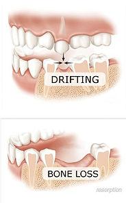 drifting and bone loss