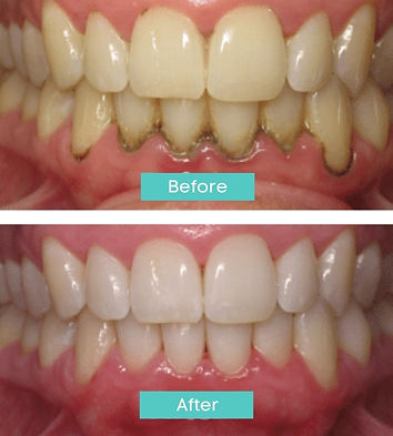 periodontal-laser-before-after.jpg