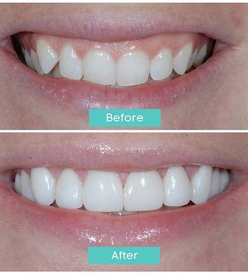 laser-gummy-smile-before-after.jpg