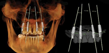 3d xray implant planning.png