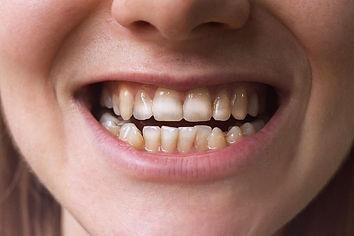 white-spot-removal-teeth.jpg