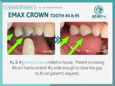 Emas Crown #4&#5_Case Study_Zen Dental C