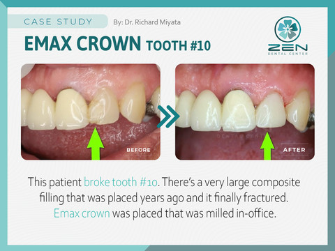 Emax Crown #10_Case Study_Zen Dental Cen
