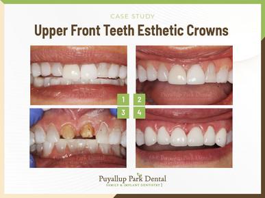 Upper Front Teeth Esthetic Crowns