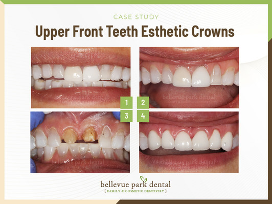 Upper Front Teeth Esthetic Crowns