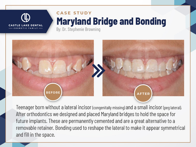 Maryland Bridge and Bonding