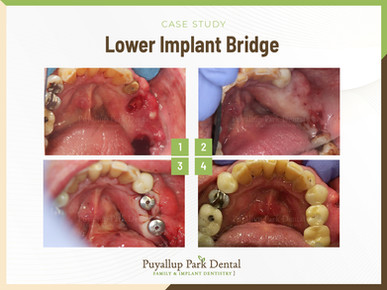 Puyallup Park Dentistry_Lower Implant Br