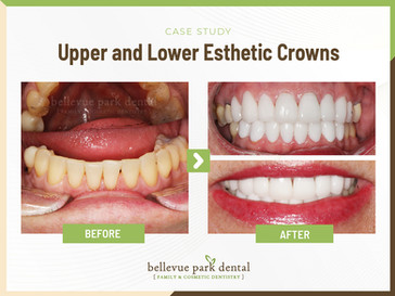Upper and Lower Eststhetic Crowns
