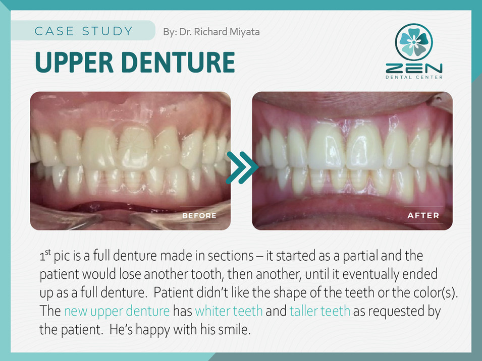 Upper Denture _Case Study_Zen Dental Cen