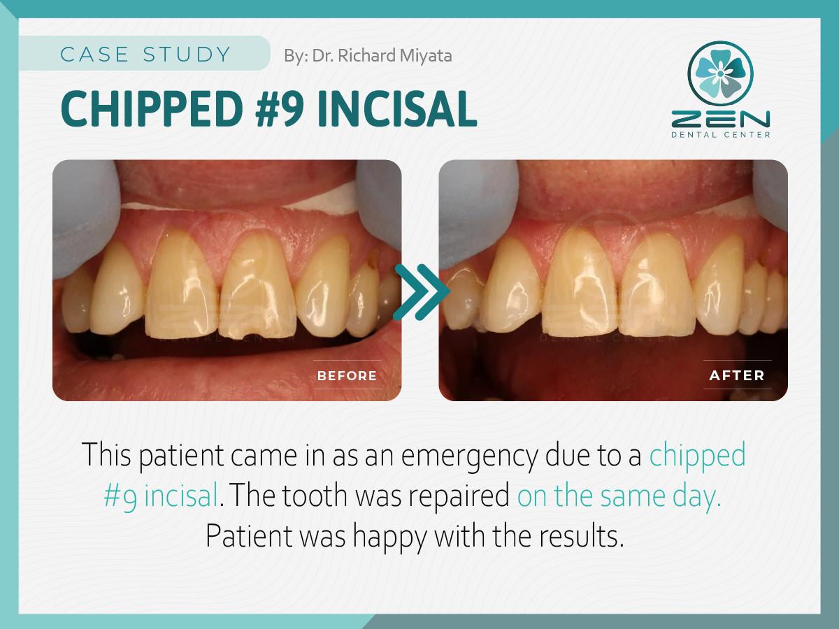 Chipped #9 Incisal_Case Study_Zen Dental
