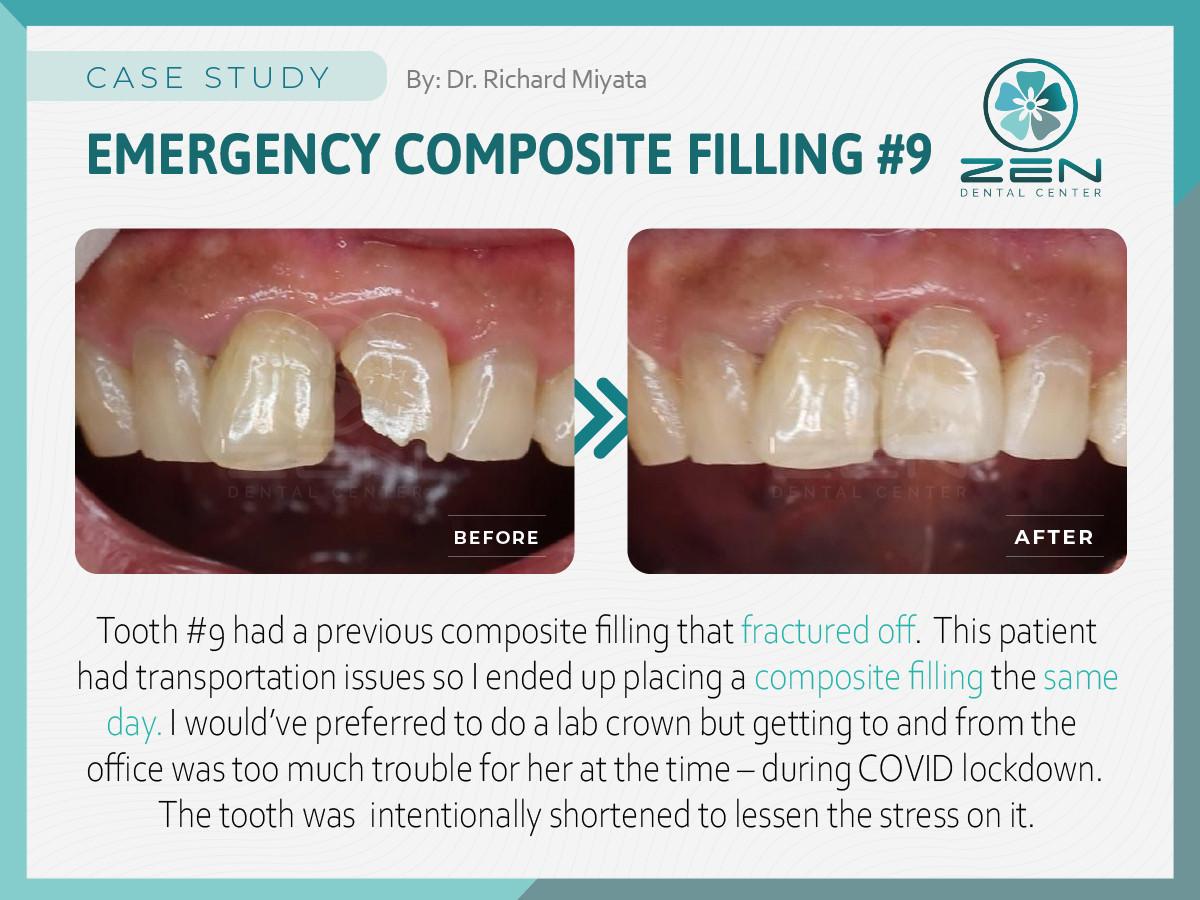 Emergency Composite Filling #9_Case Stud
