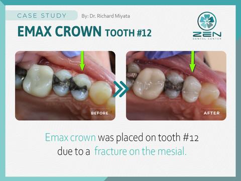 Emax Crown # 12_Case Study_Zen Dental Ce