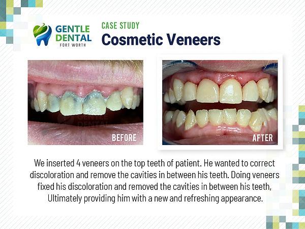 Gentle Dental_Cosmetic Veneer_Case Study