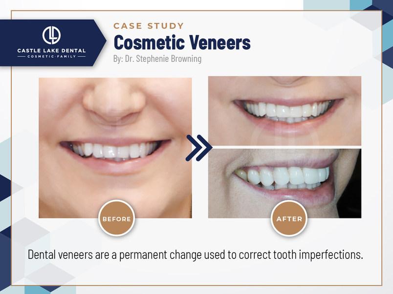 Cosmetic Veneers