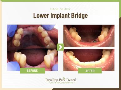Lower Implant Bridge