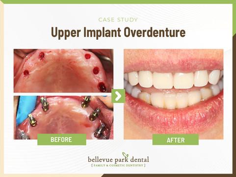 Upper Implant Overdenture