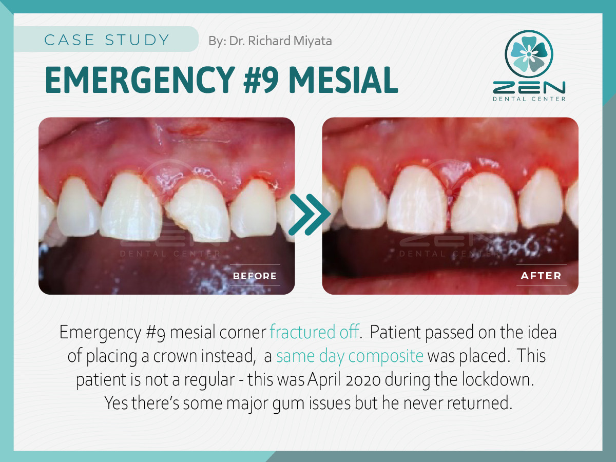 Emergency #9 Mesial_Case Study_Zen Denta