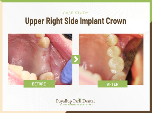 Upper Right Side Implant Crown